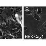 Caveolin interaction governs Kv1.3 lipid raft targeting. Sci Rep. 2016 Mar 2;6:22453. doi: 10.1038/srep22453.